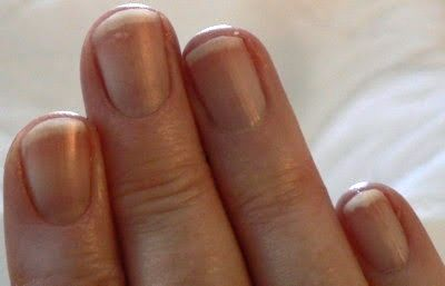 What Your Body Is Trying To Tell You Fingernail Health