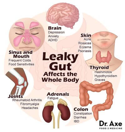 How To Cure Leaky Gut Syndrome Naturally